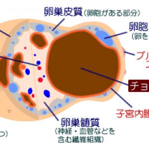 卵巣チョコレート嚢胞