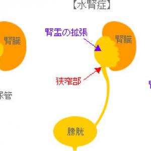 両側水腎症