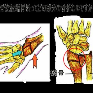 左橈骨遠位端