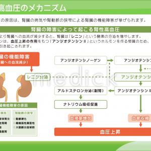 腎性高血圧