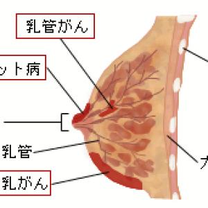 進行性乳がん