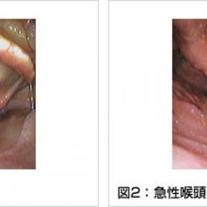 急性咽頭喉頭炎