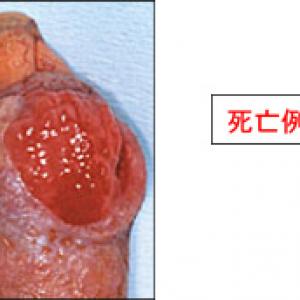 パスツレラ症