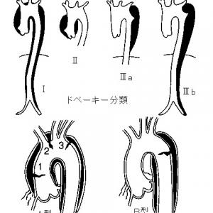 解離性大動脈瘤