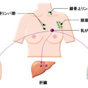 乳がん 肺 骨 転移