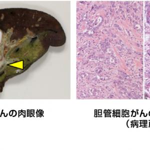 胆管細胞がん
