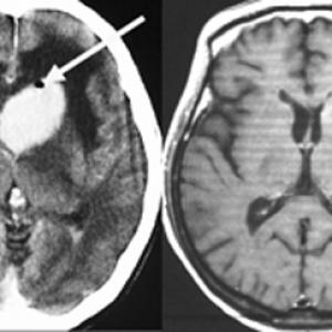 脳リンパ腫