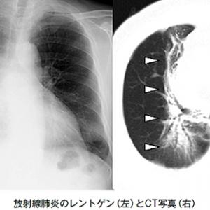 放射線食道炎