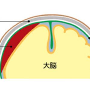 硬膜下血腫