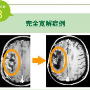 脳腫瘍寛解