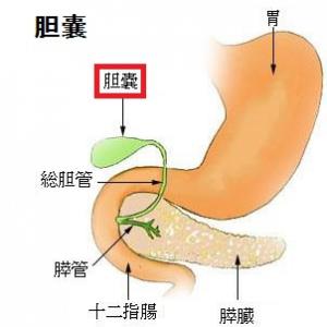 急性胆のう炎