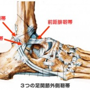 右足関節外側靭帯損傷