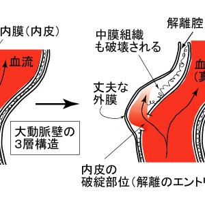 大動脈剥離