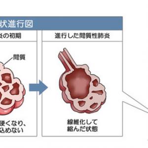 間質性肺炎